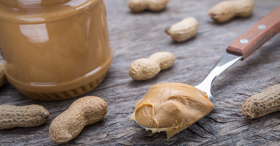 Nut allergies are a serious issue for some travellers.