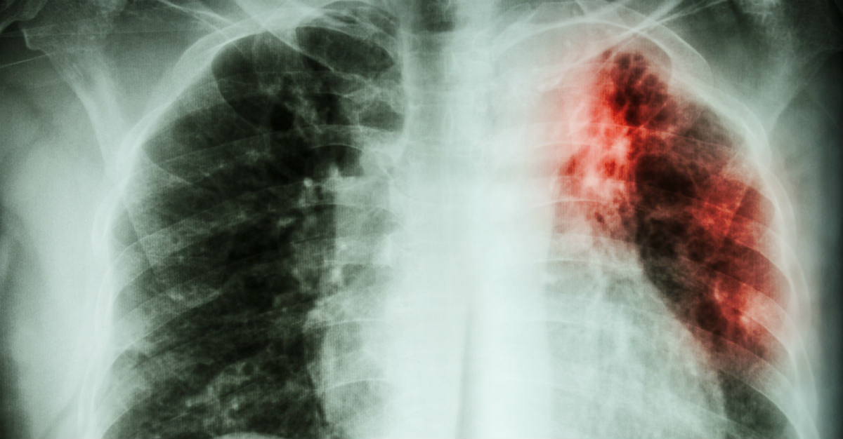 Tuberculosis shouldn't be treated as just another eradicated disease.