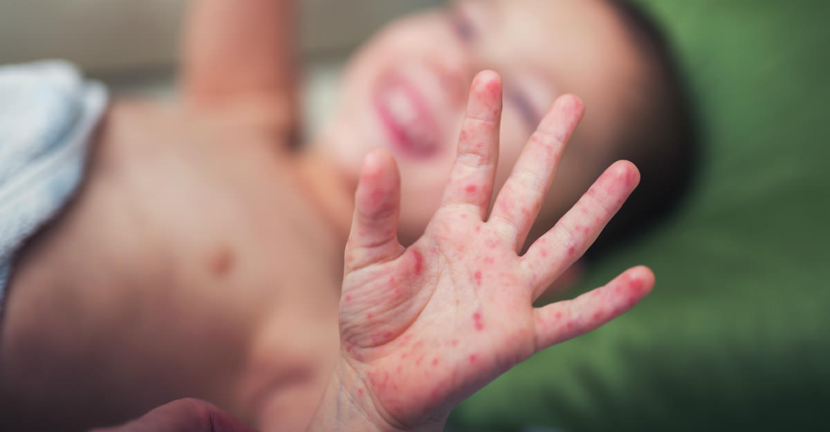 Le monde a beaucoup progressé dans l'éradication de la rougeole, mais des centaines d'enfants tombent encore victimes de la maladie à tous les jours.