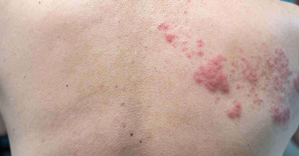 One Long Term Symptom Of Shingles May Include Nerve Damage