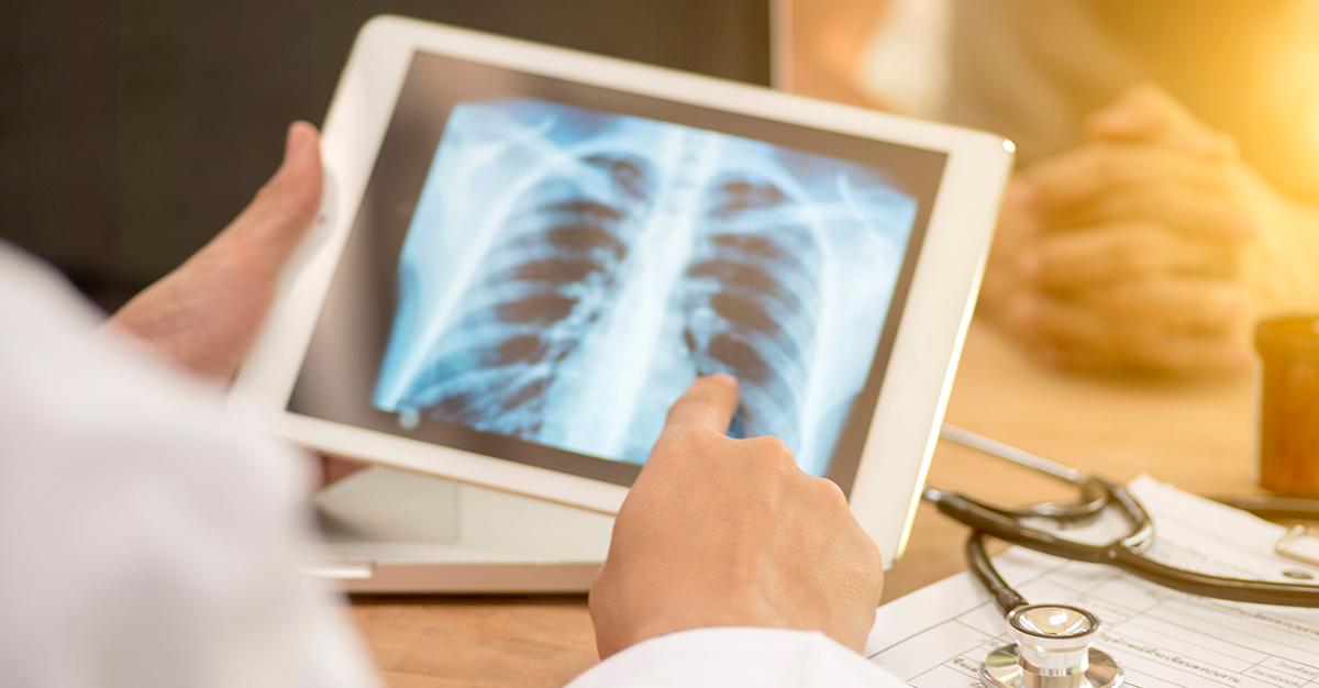 ¿Qué es la tuberculosis y cuáles tratamientos existen?