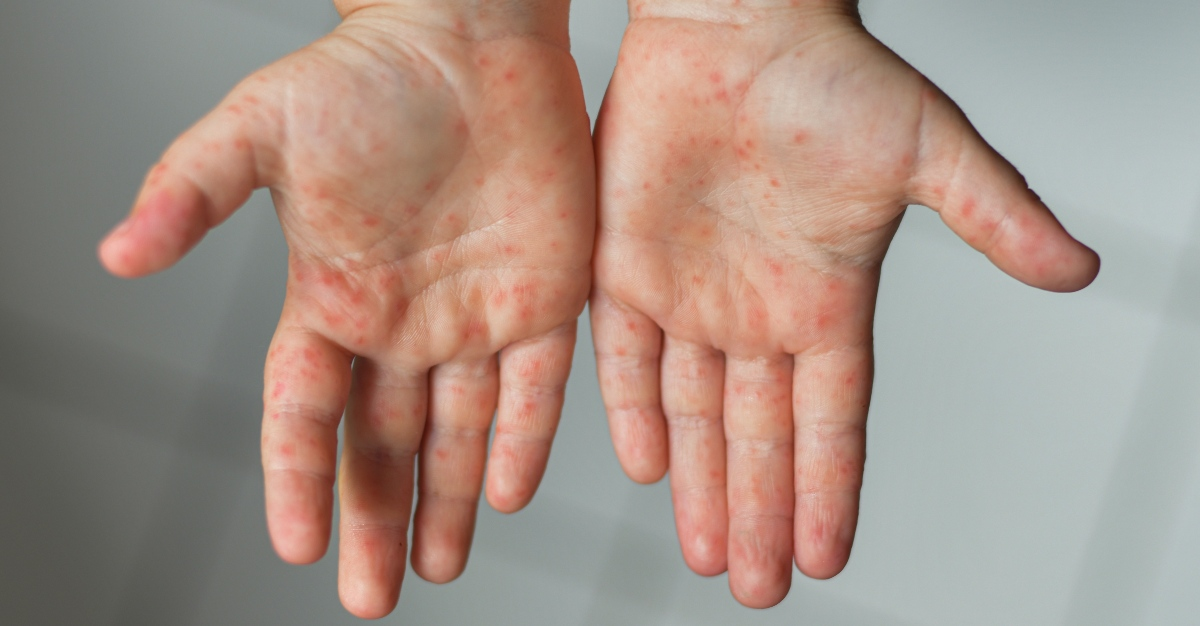 A rash is one of the clearest signs of measles infection.